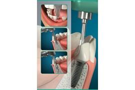 اعطای نمایندگی تجهیزات دندانپزشکی